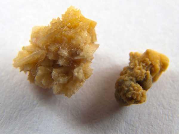 почечные камни в виде кристаллов соли