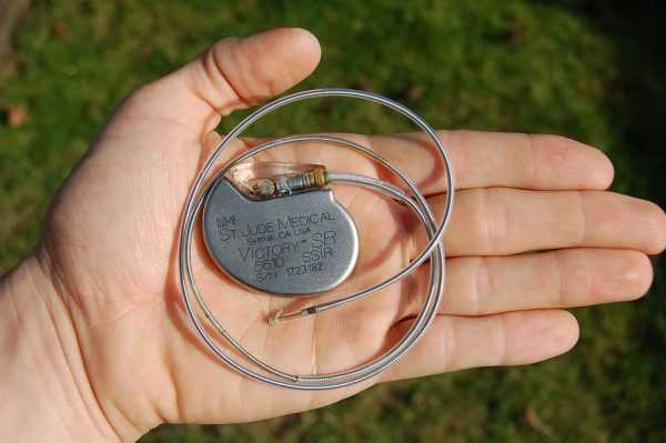кардиостимулятор на ладони