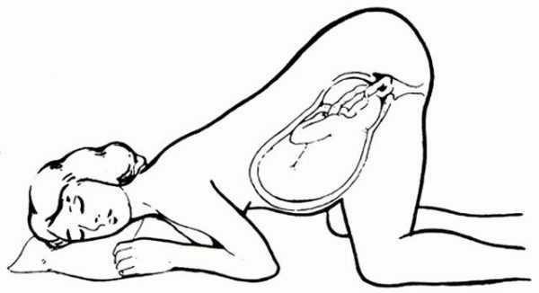 Коленно-локтевая поза