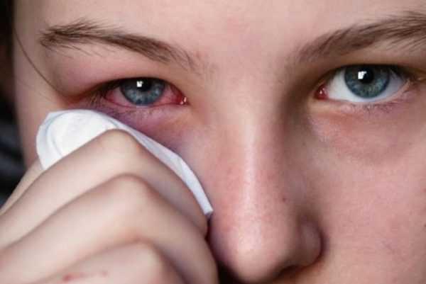 глаз женщины, поражённый конъюнктивитом