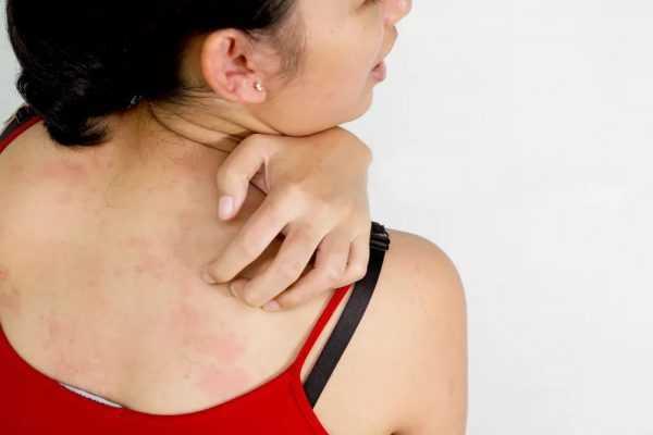 Сыпь на теле у женщины