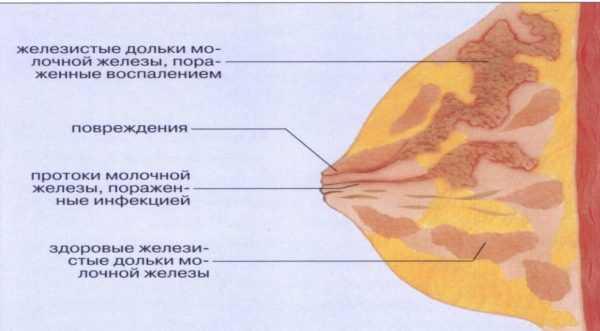 Здоровые и пораженные доли молочной железы