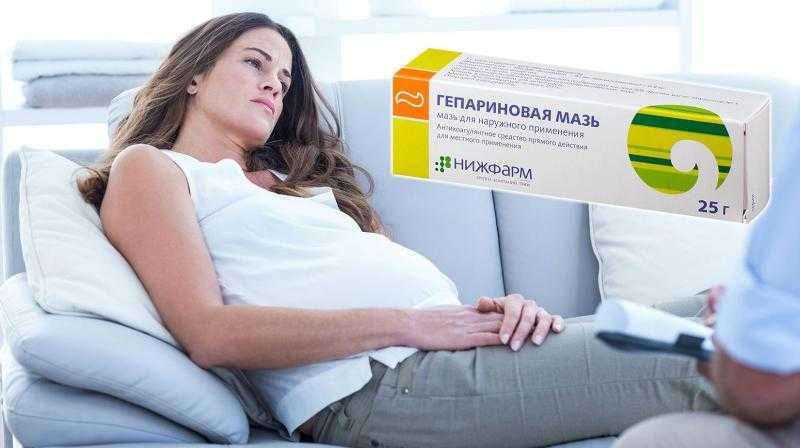 Лечение Гепариновой мазью при беременности