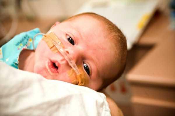 Младенец с трубками в носу