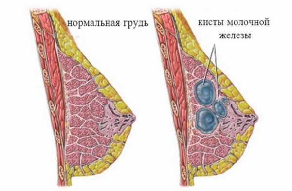 Молочная железа в разрезе с кистой и без