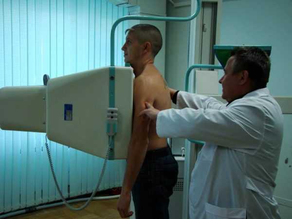Мужчина с врачом на процедуре флюорографии