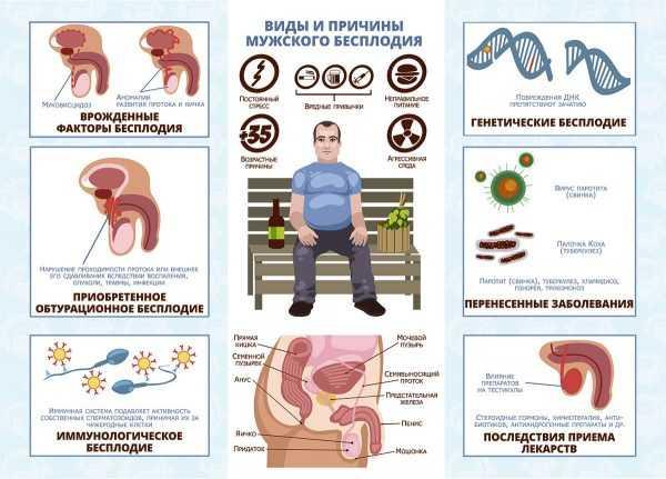Схема видов и причин мужского бесплодия