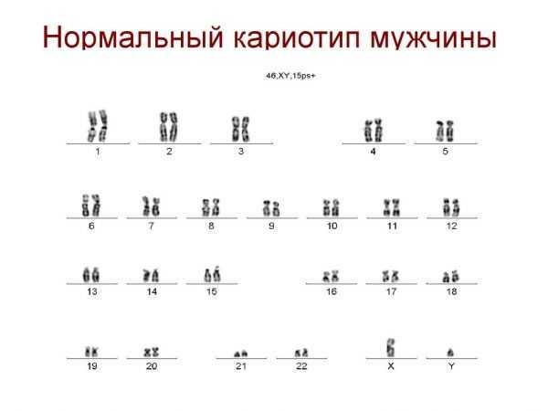 На фото — таблица с изображением хромосомного набора человека