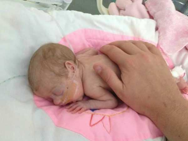 новорождённый с трубкой для дыхания