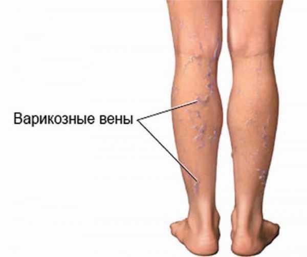 Ноги с тромбофлебитом