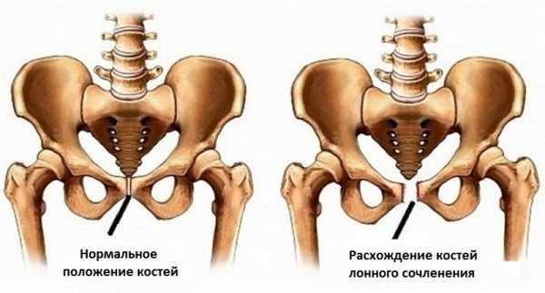 Нормальное положение костей симфиза и их расхождение