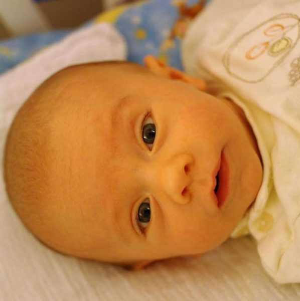лицо новорождённого с желтухой