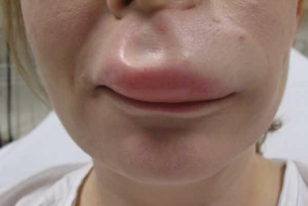 нижняя часть лица с распухшей верхней губой