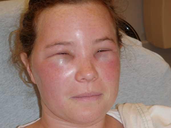 женщина с опухшим лицом и сузившимися глазами