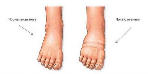 Отёк ног при беременности на рисунке