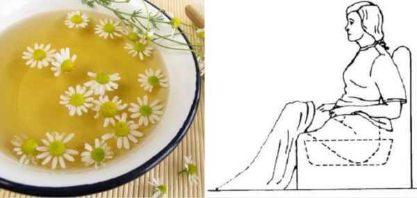 Отвар ромашки в тазике, женщина принимает сидячую ванну