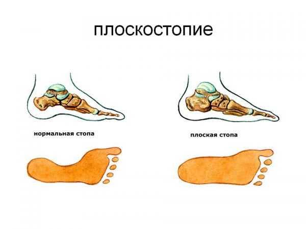 Нормальная и плоская стопа