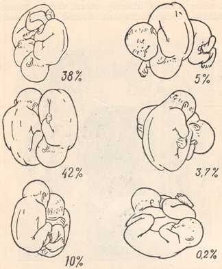 Положения близнецов в матке