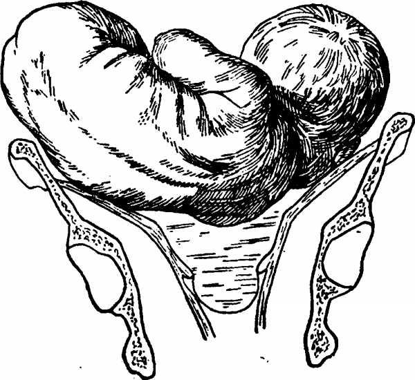 Поперечное предлежание плода