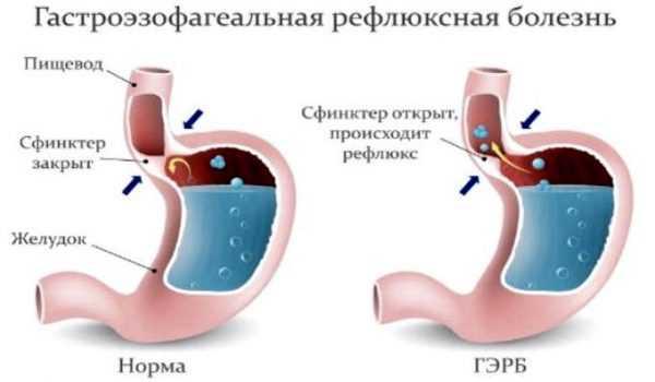 Положение сфинктера в норме и при рефлюкс-гастрите