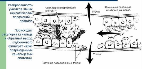Острый канальцевый (тубулярный) некроз