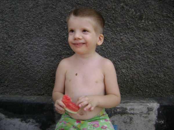 Мальчик с синдромом Эдвардса держит арбуз