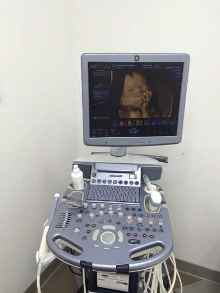 Аппарат для 3D УЗИ