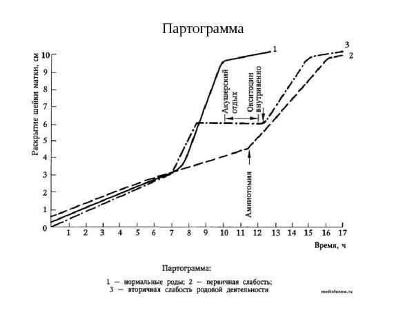 Партограмма родов