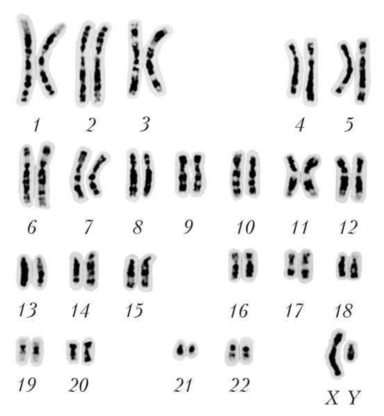 набор хромосом (кариотип) человека на схеме