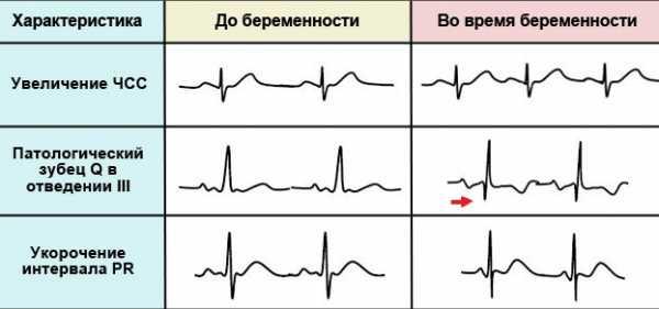 Сравнение кардиограммы до и во время беременности