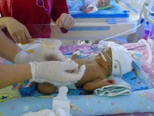 младенец, подключённый к аппаратам
