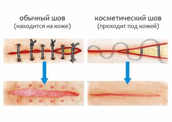 Изображение видов швов