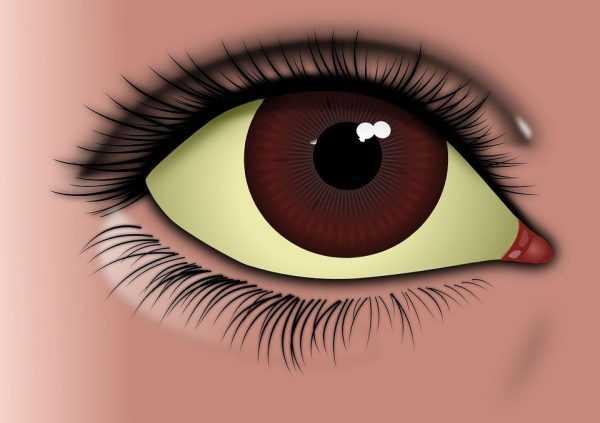 женский глаз с пожелтевшей склерой на схеме