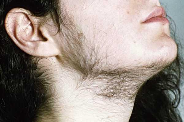 оволосение на щеках и шее у девушки