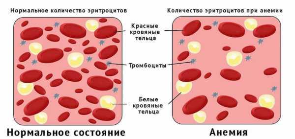 Схема, отражающая количество эритроцитов в нормальном состоянии и при анемии