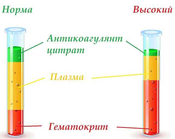 Высокий уровень гематокрита и норма