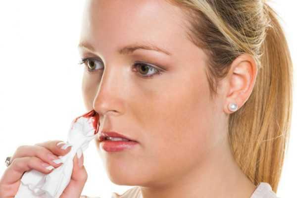 девушка держит у носа салфетку с кровью