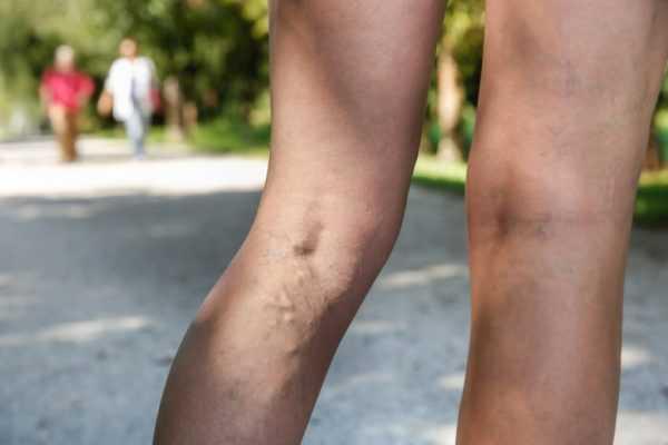 ноги женщины с варикозом