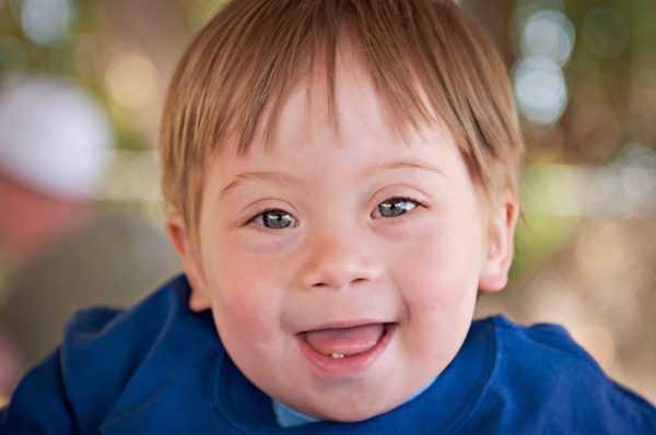 Ребёнок с синдромом Дауна улыбается