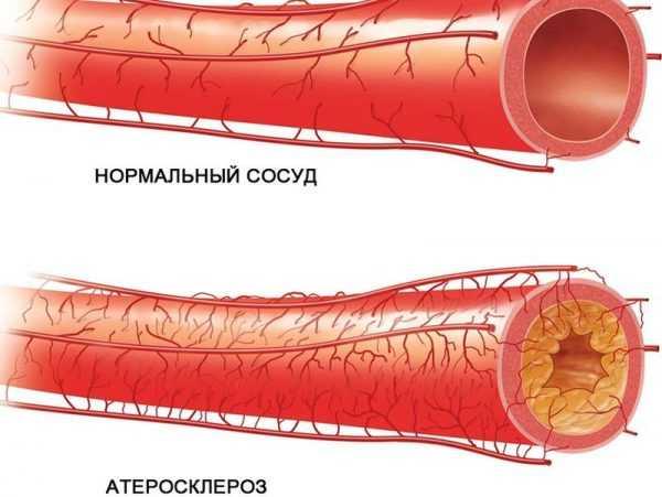 Нормальный сосуд и сосуд с холестерином внутри на схеме