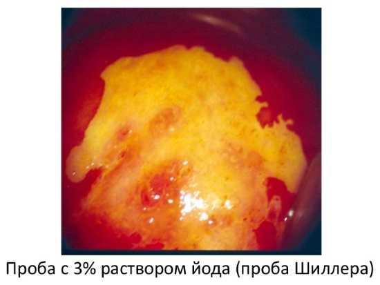 Проба с йодовым раствором при кольпоскопии