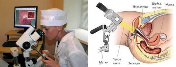 Врач смотрит в колькоскоп, луч прибора, направленный во влагалище