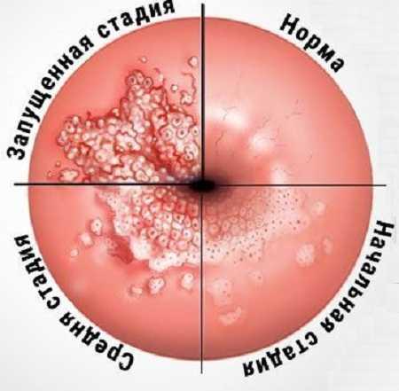Нормальная шейка матки и поражённая эрозией в разных стадиях