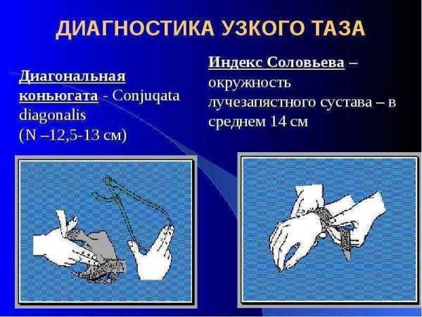 Измерение диагональной конъюгаты и окружности запястья