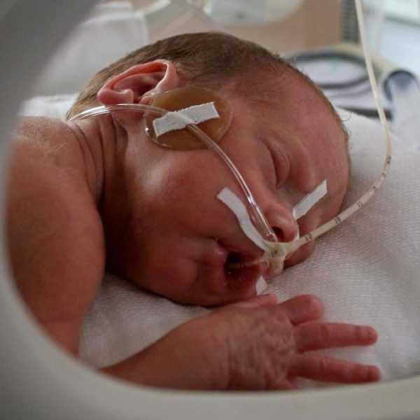 лицо новорождённого с закреплёнными на коже катетерами