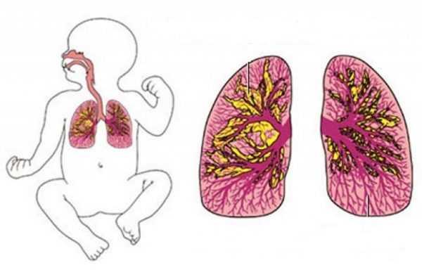 Лёгкие новорождённого, поражённые пневмонией
