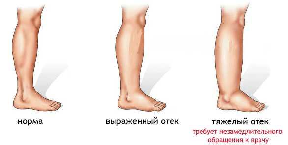 Стадии тяжести отёков ног