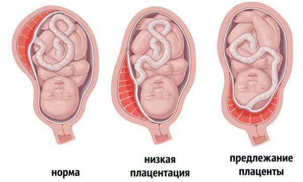 Варианты расположения плаценты