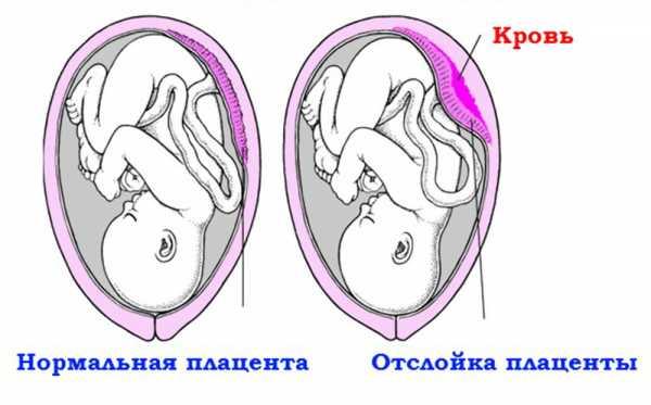 Отслойка плаценты и её нормальное положение