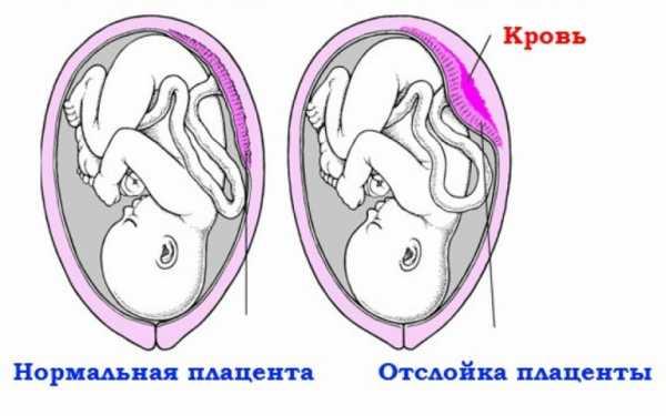 Нормальное положение плаценты и её отслойка